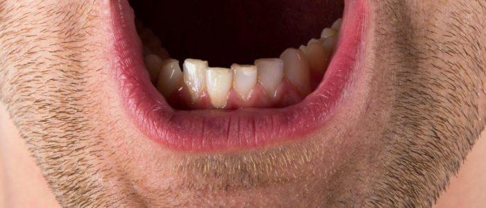 tandkød på engelsk